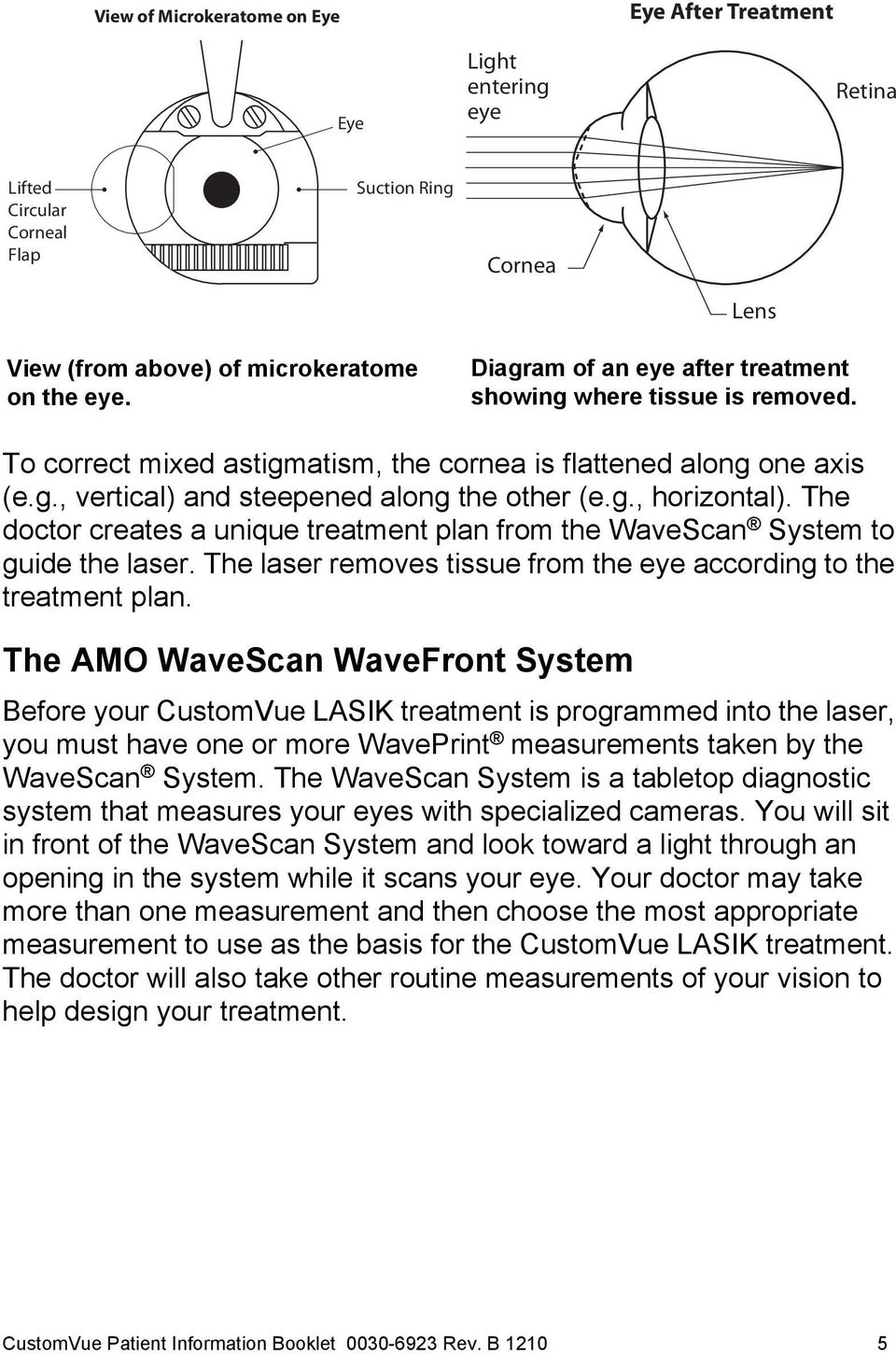 The doctor creates a unique treatment plan from the WaveScan System to guide the laser. The laser removes tissue from the eye according to the treatment plan.