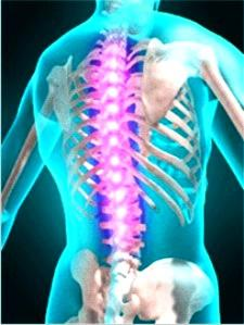 Myelitis: Specific diseases - A disease involving inflammation of the spinal cord, which disrupts central nervous system functions linking the brain and limbs.
