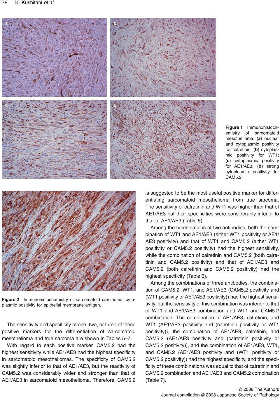 (d) strong cytoplasmic positivity for CAM5.2. Figure 2 Immunohistochemistry of sarcomatoid carcinoma: cytoplasmic positivity for epithelial membrane antigen.