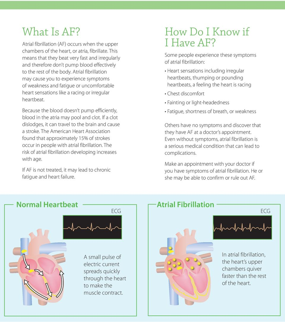 Atrial fibrillation may cause you to experience symptoms of weakness and fatigue or uncomfortable heart sensations like a racing or irregular heartbeat.