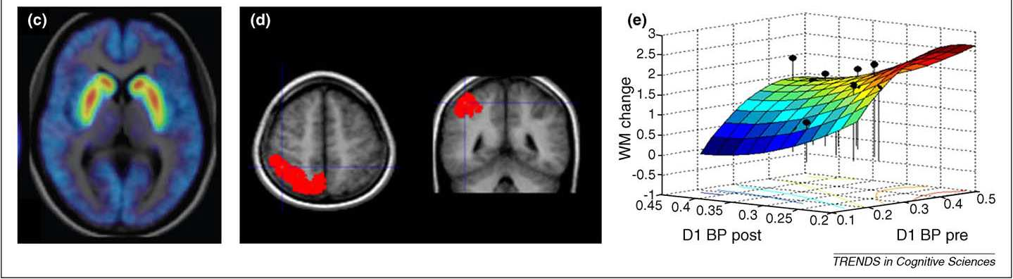 Training and Plasticity of Working Memory (Klingberg, 2010) Overview of 10 fmri studies using primarily computerized working memory tasks Includes data on stroke (Westerberg, H. et al.