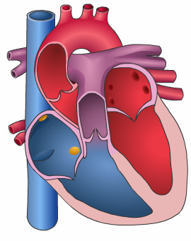 Heart Valve Replacement Introduction Sometimes people have serious problems with the valves in their hearts. A heart valve repair or replacement surgery restores or replaces a defective heart valve.