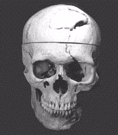 This is what happened to Phineas Gage... Notice what part of the brain is injured.