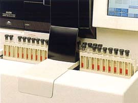 Workload to identify abnormal samples and to re-analyze them is significantly streamlined.