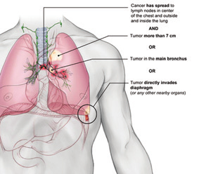 For example, the lung cancer may have spread to the lymph nodes located in the center of the chest, which is outside the lung. Or, the tumor may have invaded nearby structures in the lung.