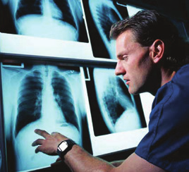 Lung Cancer Treatment In cancer care, different types of doctors often work together to create an overall treatment plan that combines different types of treatment.