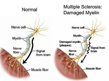 Multiple Sclerosis MS is a chronic disease of the central nervous system. Progressive deterioration of various functions of CNS.