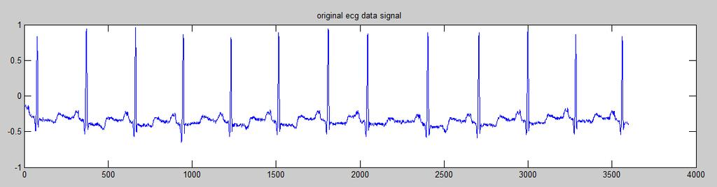INTELLIGENT ECG SIGNAL NOISE REMOVAL WITH MOVING MEDIAN FILTER USING