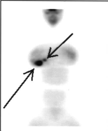 PET Scan Showing Two Areas of IDC Right