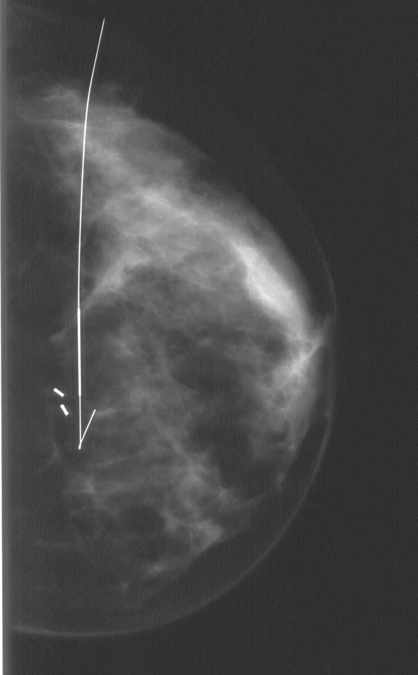 Digital Mammography using