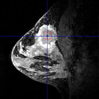4T-MRI Choline peak is clearly visible