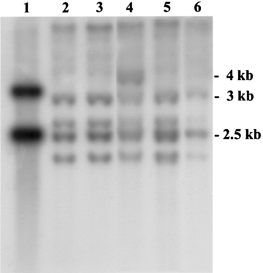 SALL1 MUTATIONS IN TOWNES-BROCKS SYNDROME 383 FIGURE 3. Southern blot analysis of SALL1 exon 2 in TBS individuals. HindIII-digested genomic DNA from BAC 230e15 (lane 1), patients TB12 (t(5;16)(p15.