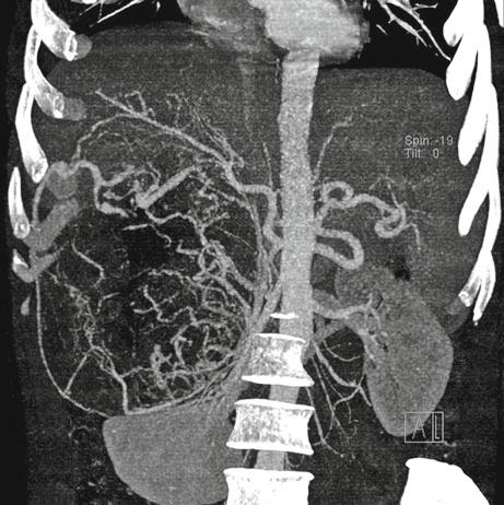 67-year-old male presented with an 18-month history of