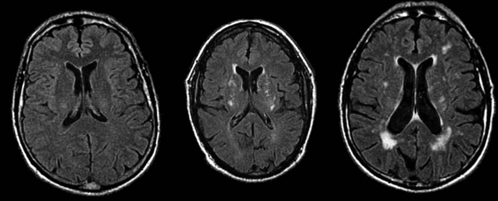 WORKING MEMORY AND WHITE MATTER HYPERINTENSITIES 391 FIGURE 1. Axial FLAIR images of WMH. The image on the left represents a normal brain, whereas the other two images show increasing WMH loads.