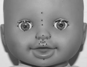 A Review of Facial Image Analysis for Delineation of the