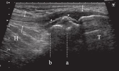332 Zbigniew Czyrny et al Osgood-Schlatter disease in ultrasound diagnostics a pictorial essay Type III (fig 28-43) Delamination tear of the ossification center resulting in irregular deformation of