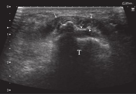 Cartilage fracture at least in part within the footprint of the patellar ligament insertion.