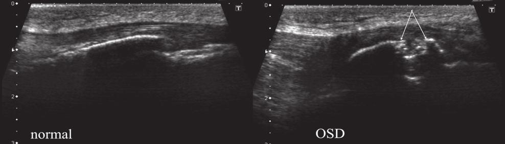 Transverse US image at level a from previous figure; type III OSD.