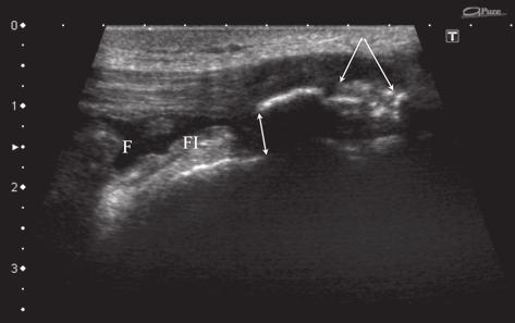 Medical Ultrasonography 2010; 12(4): 323-335 333 Fig 32. OSD type III, patient from the previous image.