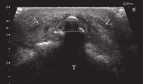 Double dashed arrow, massive local calcium deposits infiltrating the entire thickness of the patellar ligament; long arrow, proximal level of the patellar ligament s insertion. Fig 35.