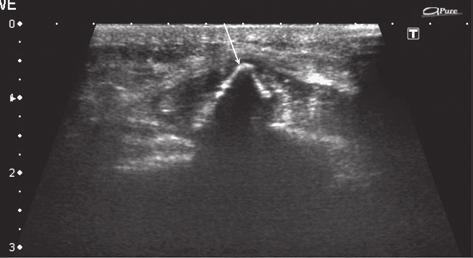 US longitudinal image of the type III OSD at the border of an ectopic ossification (patient from previous image) shows rebuilt scar of the patellar ligament at the border of the intraligamentous