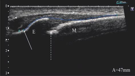 Lateral radiograph of normal late-stage formation of the beak-like process of the epiphyseal part of the tibial tuberosity (*).