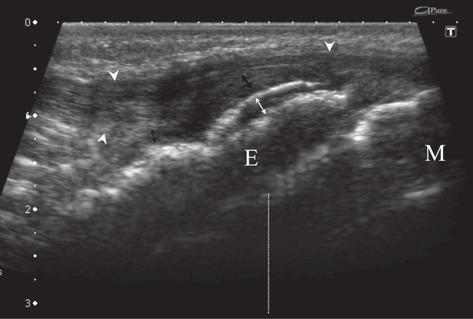 328 Zbigniew Czyrny et al Osgood-Schlatter disease in ultrasound diagnostics a pictorial essay The pathologic features and clinical consequences of the three types of OSD: Type I (fig 12-20)