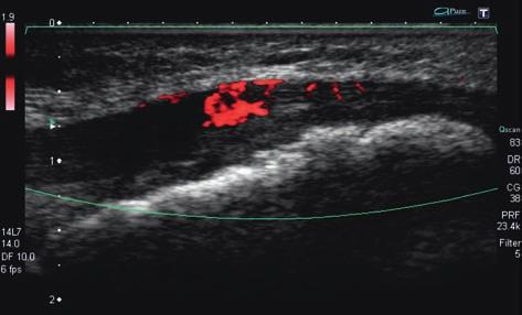 Medical Ultrasonography 2010; 12(4): 323-335 329 Fig 16. Type I OSD, longitudinal US image, patient from previous image. Hyperperfusion of the patellar ligament at the insertion.