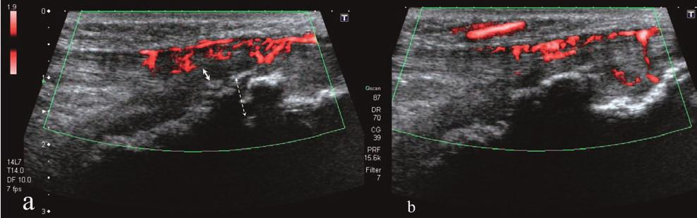 Type I OSD, longitudinal US image. Patient from previous figure. Effusion (*) and fibrosis (arrows) due to inflammation can be observed within the deep infrapatellar bursa.