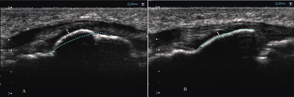 330 Zbigniew Czyrny et al Osgood-Schlatter disease in ultrasound diagnostics a pictorial essay Fig 20.