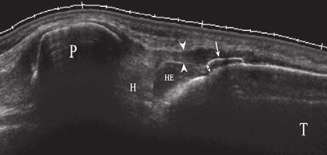 Double arrows, cartilage thickness over the ossification center; dashed line on Figure a, normal outline of the ossification center transferred directly (same scale) from Figure b, indicating the