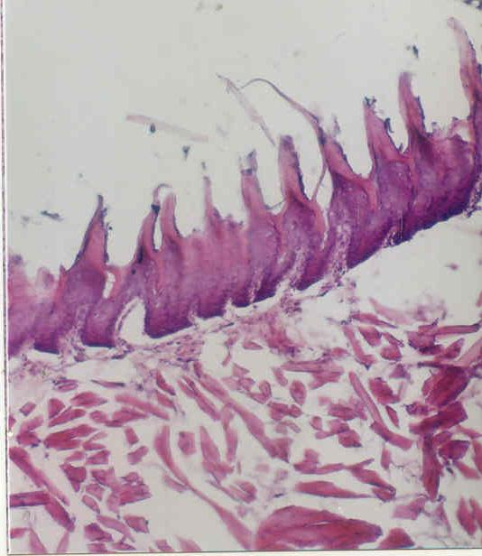 4 Study group (IIA), overall ill formed filiform papillae in shape, size and orientation
