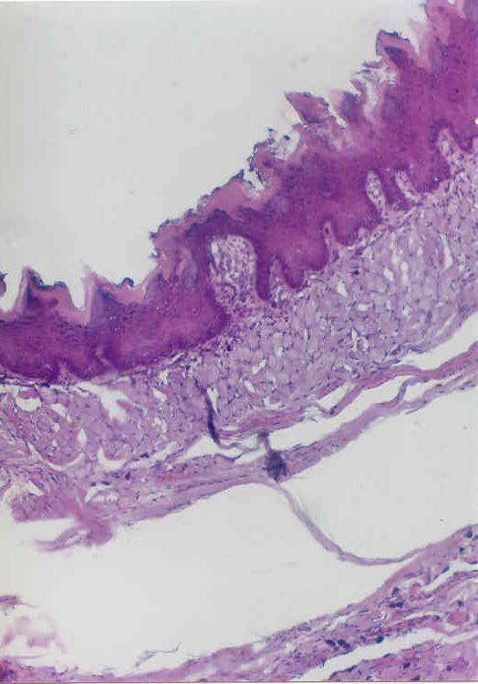 normal thickness of keratinization is covering the whole epithelial surface.