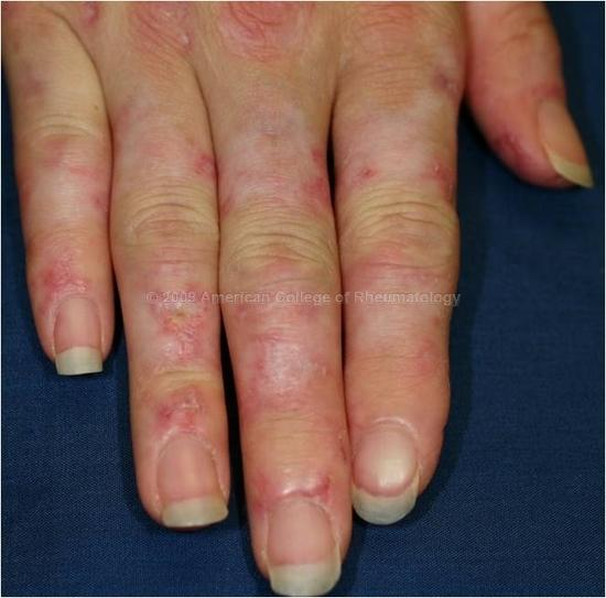 Diagnosis and Assessment 27 year old woman presents with two months of erythematous rash on hands and joint pain Labs reveal mild lymphopenia, normal CRP, and