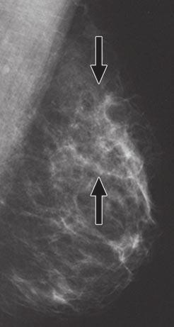 Is Breast MRI Helpful in the Evaluation of Inconclusive