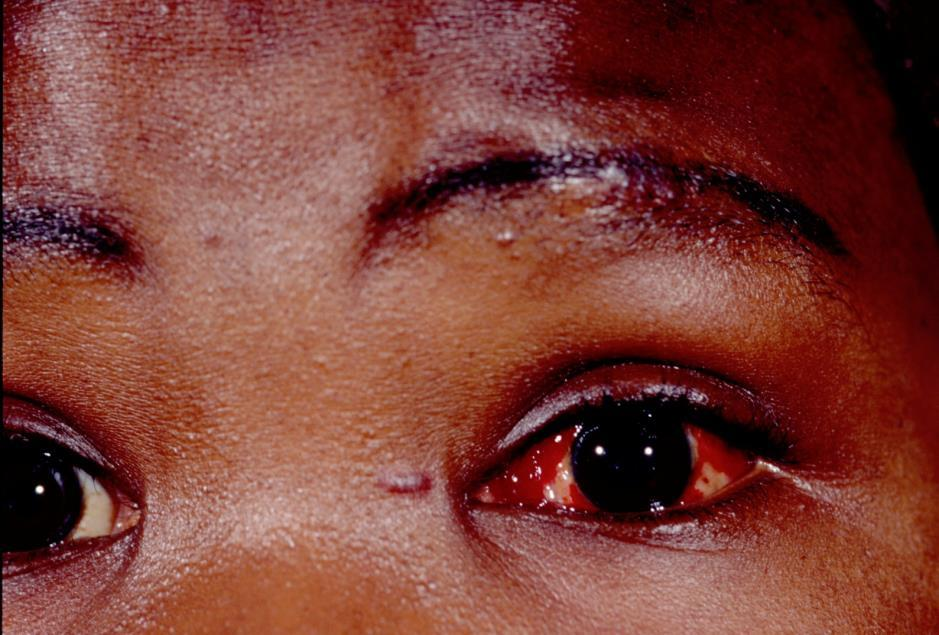 Contagious period in adults conjunctivitis