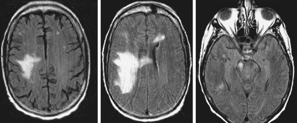 case records of the massachusetts general hospital A B C Figure 2. MRI Study Showing Progression of the Lesion over Time.