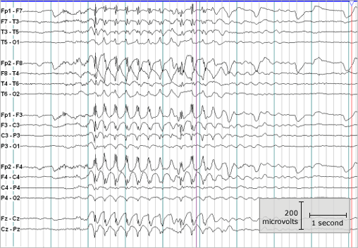 LESSON READING You can imagine that it is often difficult to distinguish a generalized seizure from a complex partial seizure with a brief aura.