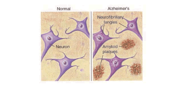 DEFINITIONS OF TERMS Alzheimer s disease (AD) major cause of dementia in old age, characterized by neurofibrillary tangles, amyloid plagues and neuron loss.