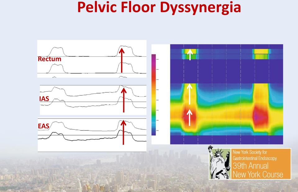 The Work Up Of Pelvic Floor Dyssynergia And Fecal