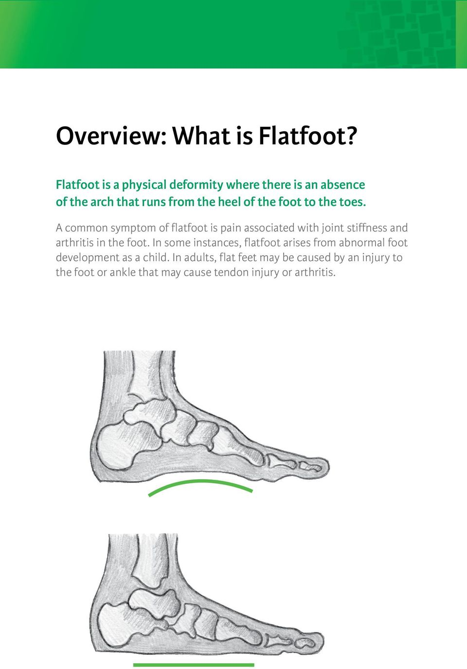 to the toes. A common symptom of flatfoot is pain associated with joint stiffness and arthritis in the foot.