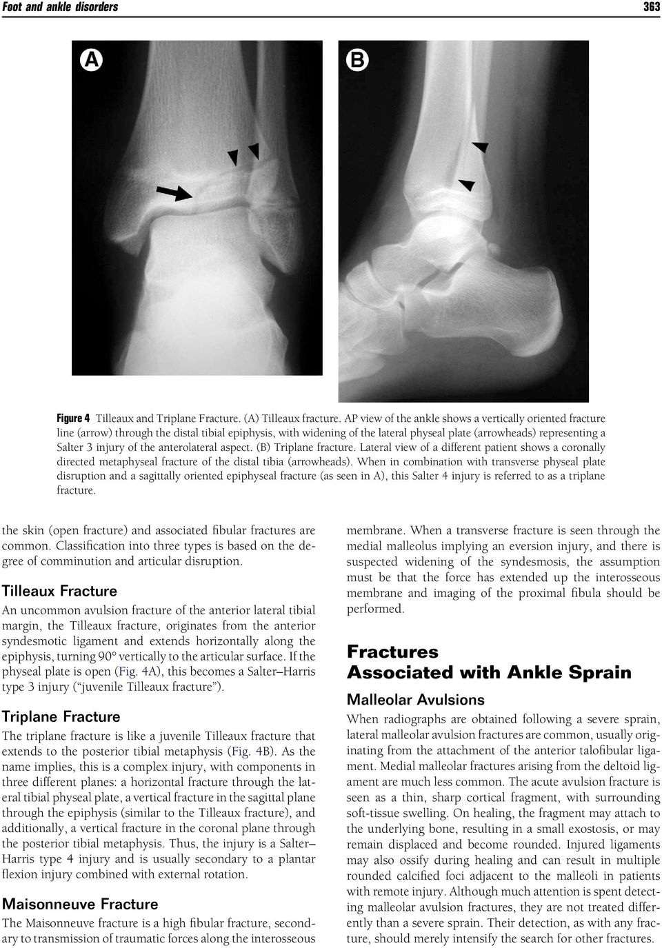 The foot and ankle are commonly imaged for a variety of - PDF