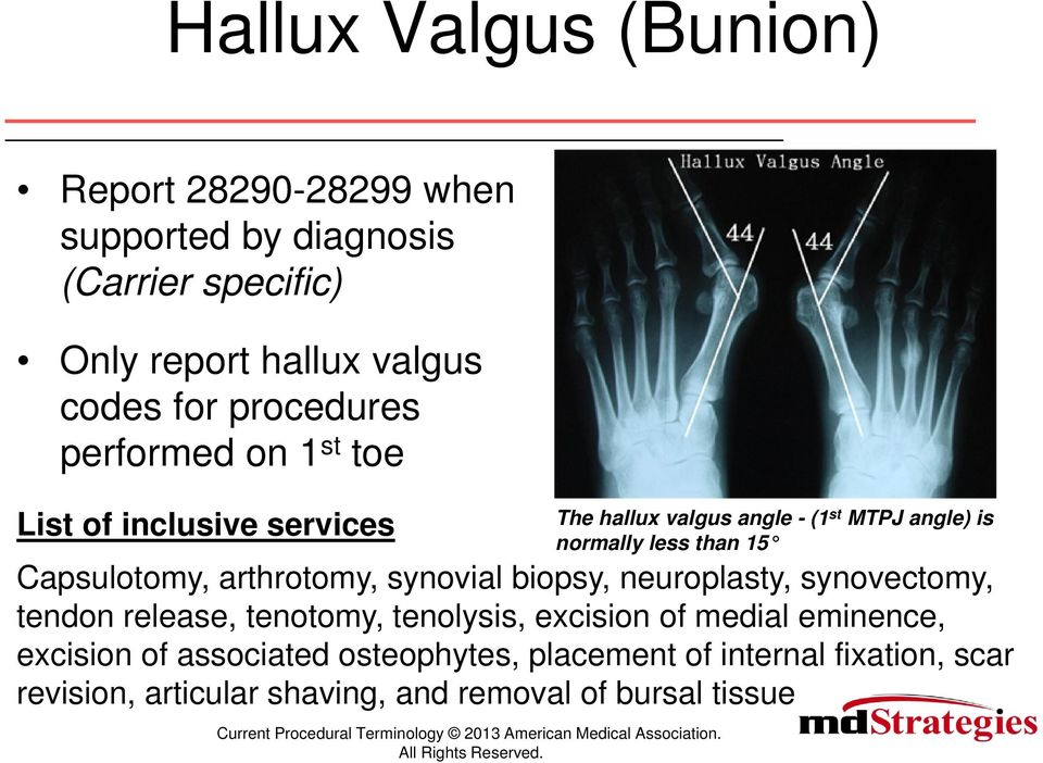 Bunion Procedures with Surgery of the Lesser Toes  Current