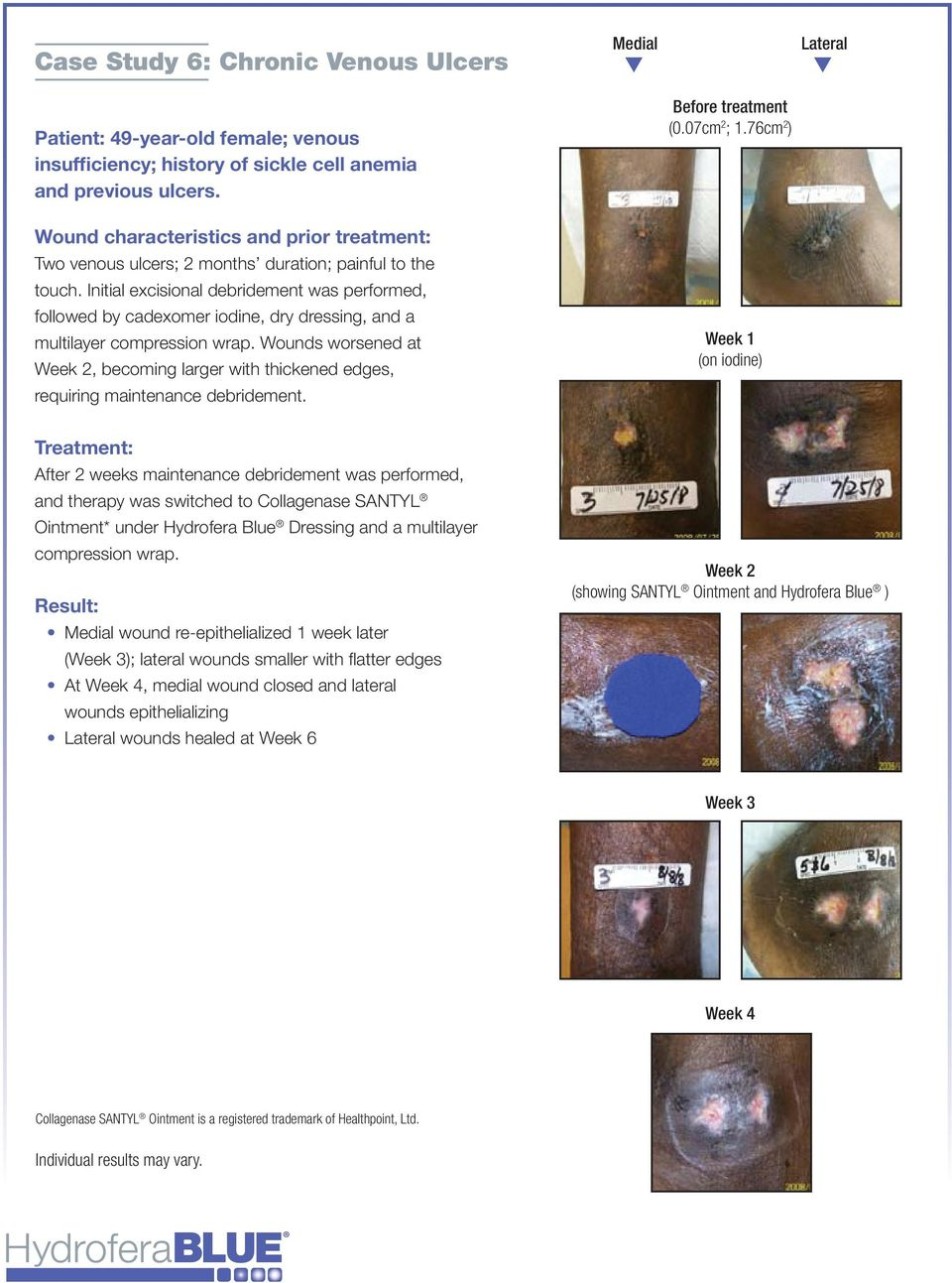 The Effective Use Of Hydrofera Blue Bacteriostatic Dressing In