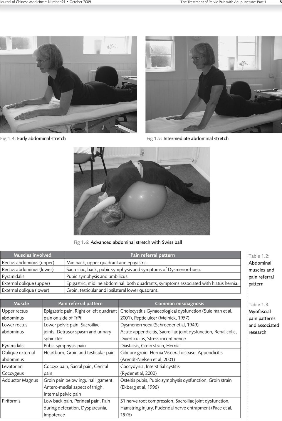 6: Advanced abdominal stretch with Swiss ball Pain referral pattern Mid back, upper quadrant and epigastric. Sacroiliac, back, pubic symphysis and symptoms of Dysmenorrhoea.