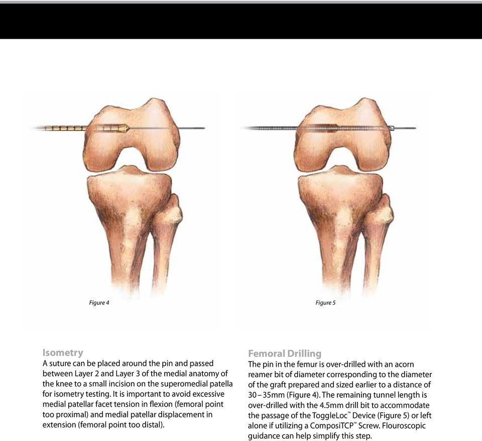 With Medial Patellofemoral Ligament Mpfl Reconstruction Surgical