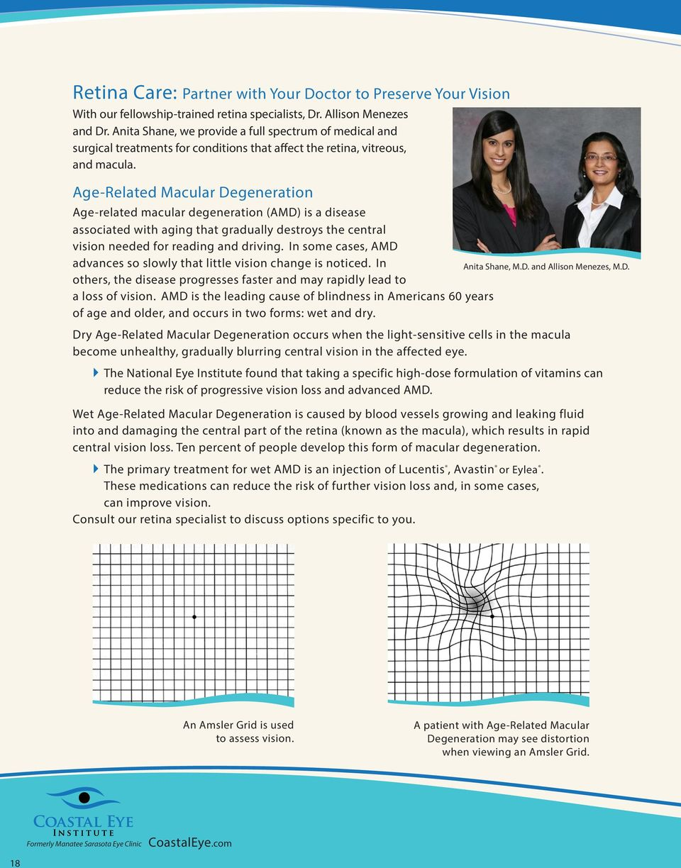 Trust Your Eye Care to Specialists - PDF