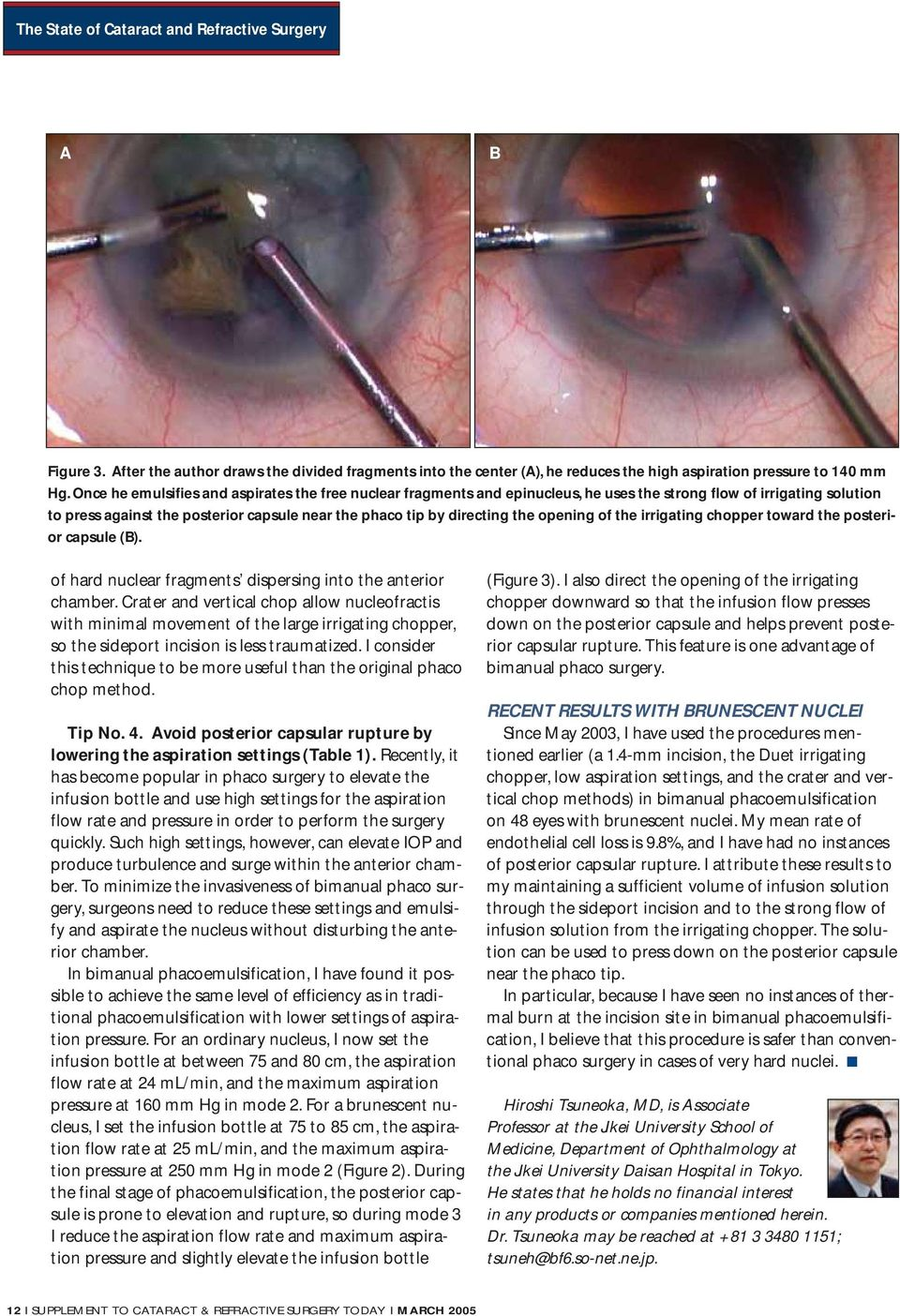 The State of Cataract and Refractive Surgery - PDF