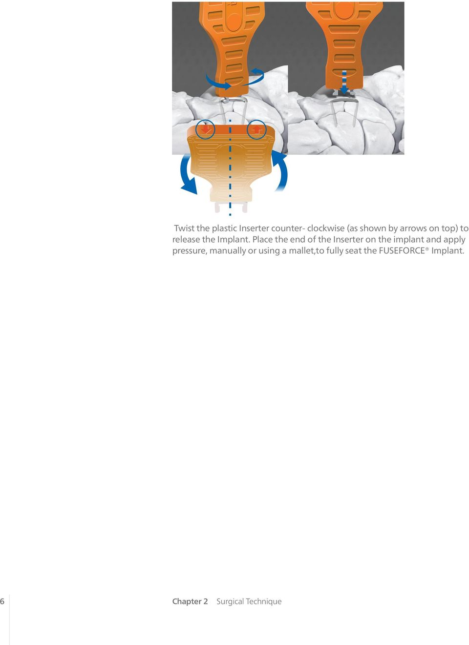 Place the end of the Inserter on the implant and apply pressure,