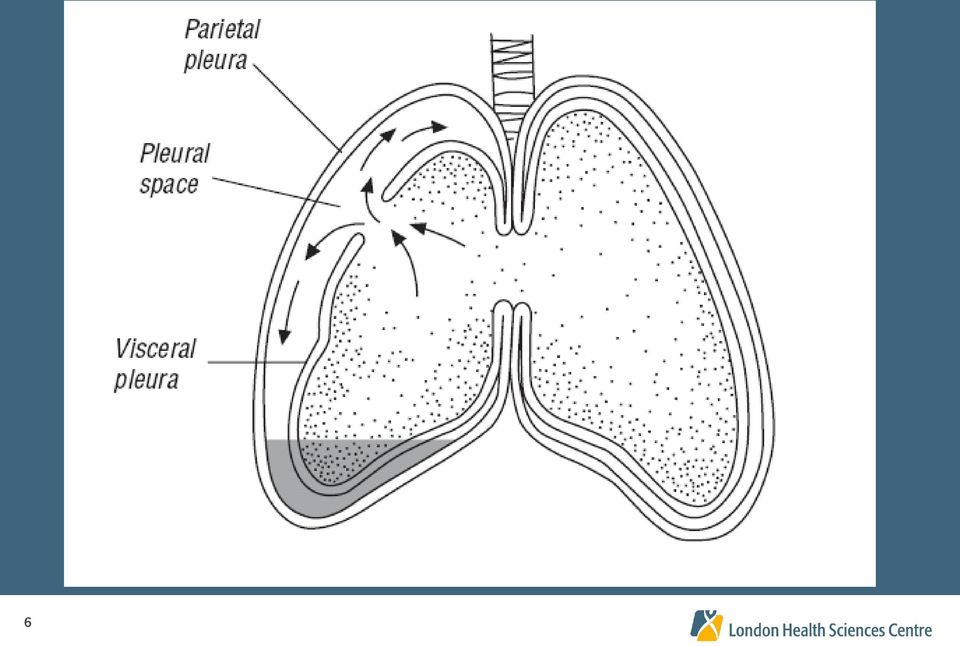 CHEST TUBES AND CHEST DRAINAGE SYSTEMS - PDF